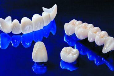 Удивительный эффект отбеливания зубов Zoom